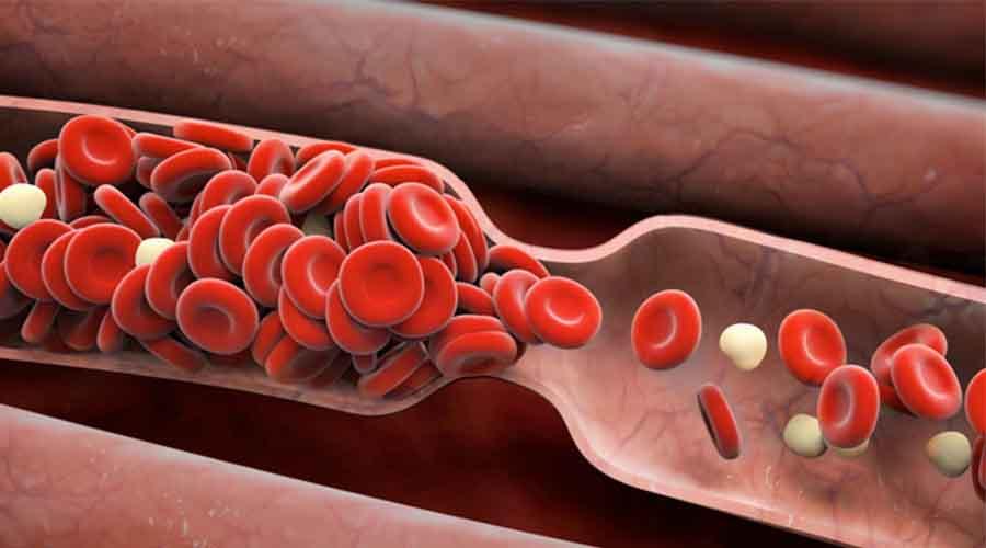 proses terjadinya pembekuan darah