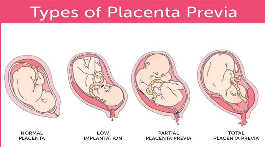 plasenta previa yang menutupi mulut rahim